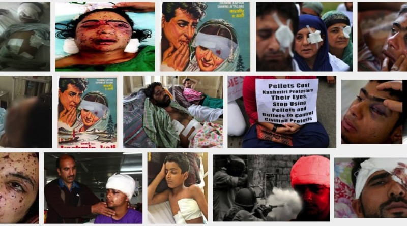 Kashmiri children injured by Indian forces firing pellets in Kashmir