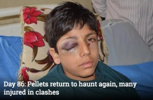 Save Kashmiri Children from pellets